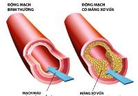 Những quan niệm sai lầm về rối loạn lipid máu