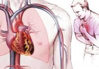 Thủ phạm gây những cơn đau thắt ngực